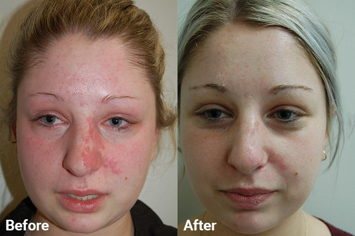 Ipl photo facial before and after