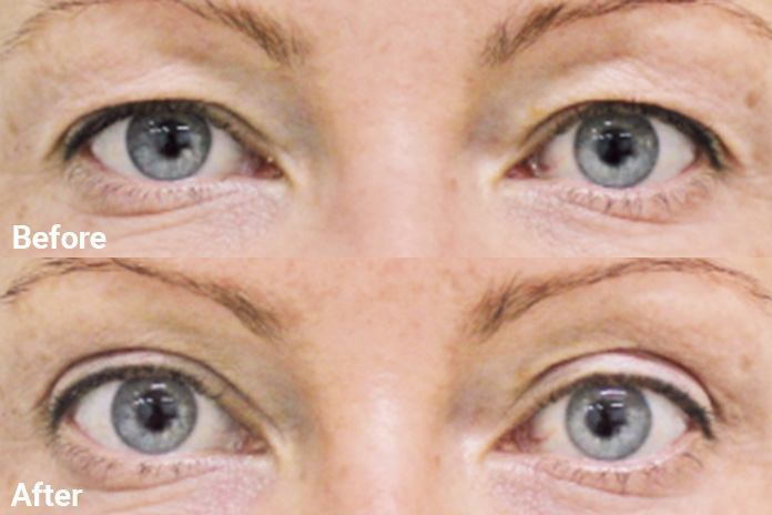 Blepharoplasty | Skin Institute